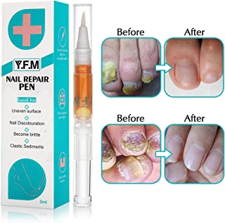 Best over the counter toenail treatment Reviews