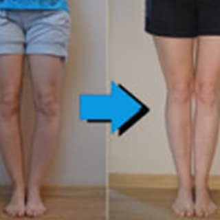 Bow Legs No More – Hot For Summer!