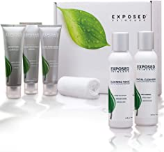 Exposed Skin Care Moisturizing Acne Treatment System (60 Day) 6 Piece Expanded Kit Hydrates, Heals and Prevents Acne Prone Skin – Includes Our Moisture Complex