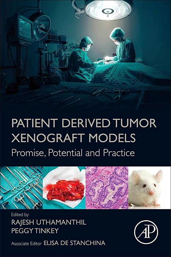 軍艦高層ビルダーツPatient Derived Tumor Xenograft Models: Promise, Potential and Practice