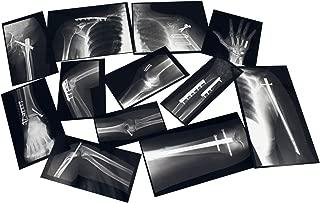 Roylco R-59255 Fixed Bones X-Rays, Black/White, 29 Pieces