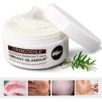 Amazon Com Scar Removal Cream For Old Scars Stretch Mark