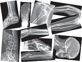 broken bone x ray