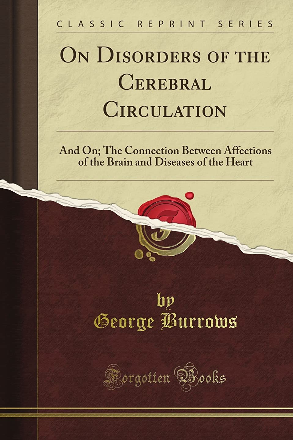靴下実施する震えるOn Disorders of the Cerebral Circulation: And On; The Connection Between Affections of the Brain and Diseases of the Heart (Classic Reprint)