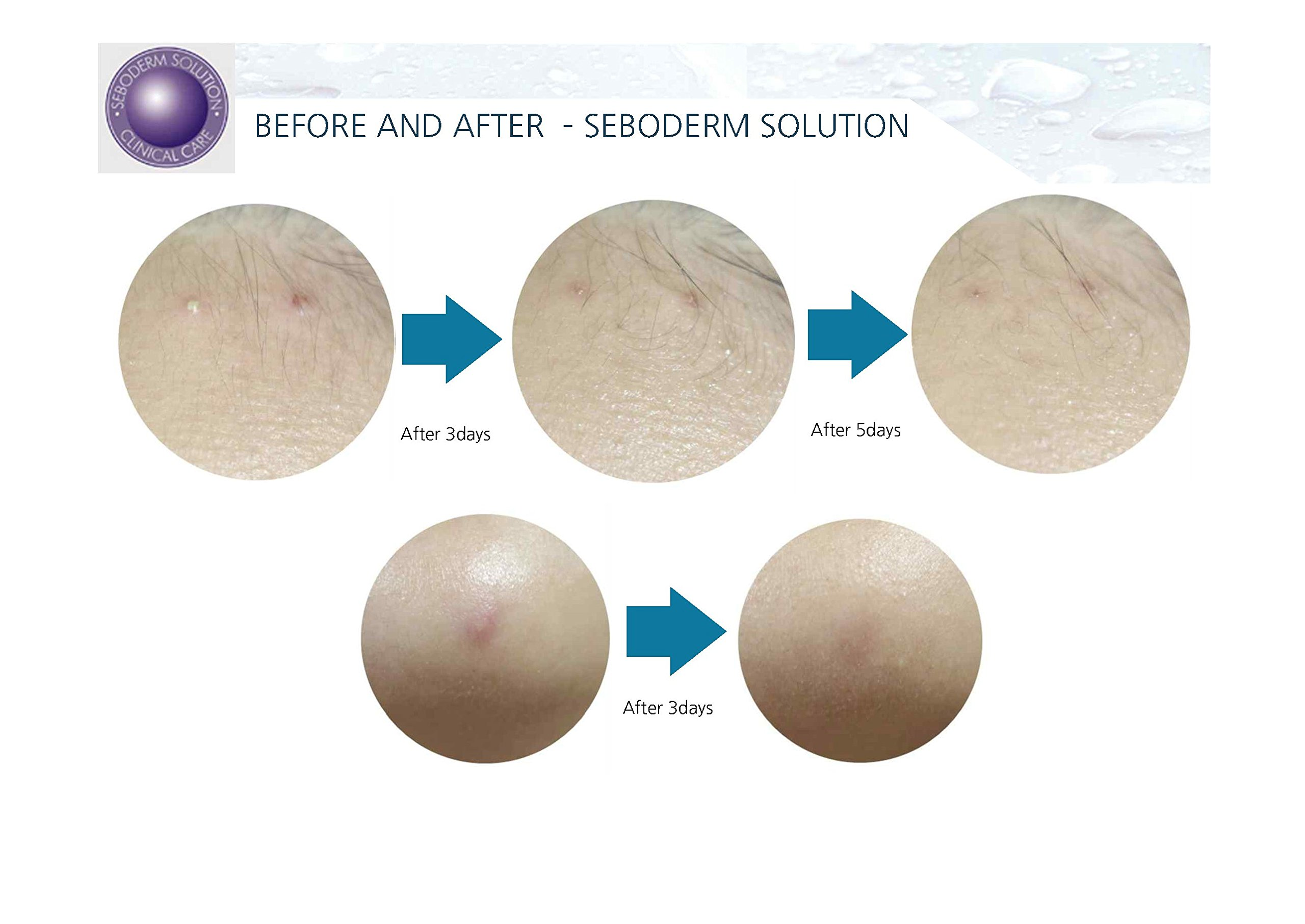 Acne Treatment Seboderm Solution Anti Acne Sebum Blemish Prone Skin Pore Care. (Serum)