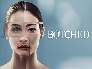 Botched Season 4