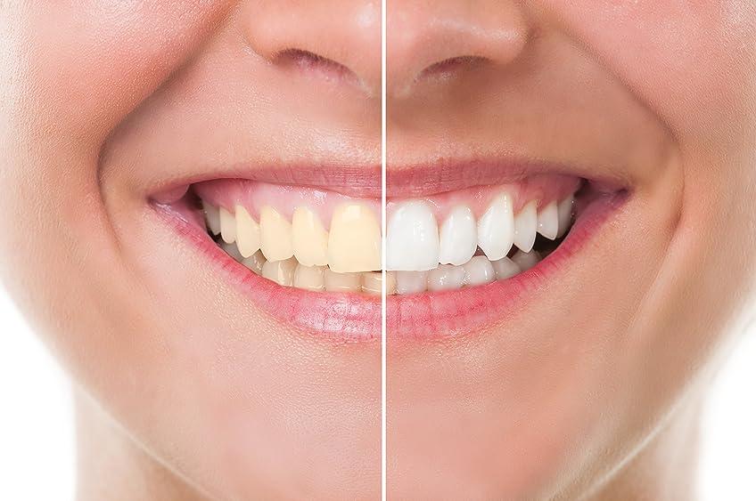 つぼみホバート最初にTeeth Whitening 歯のホワイトニング