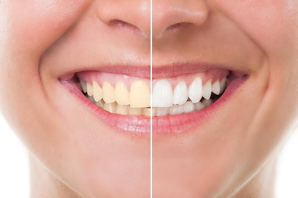 知恵因子気づかないTeeth Whitening 歯のホワイトニング