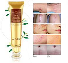 acnes scar care online