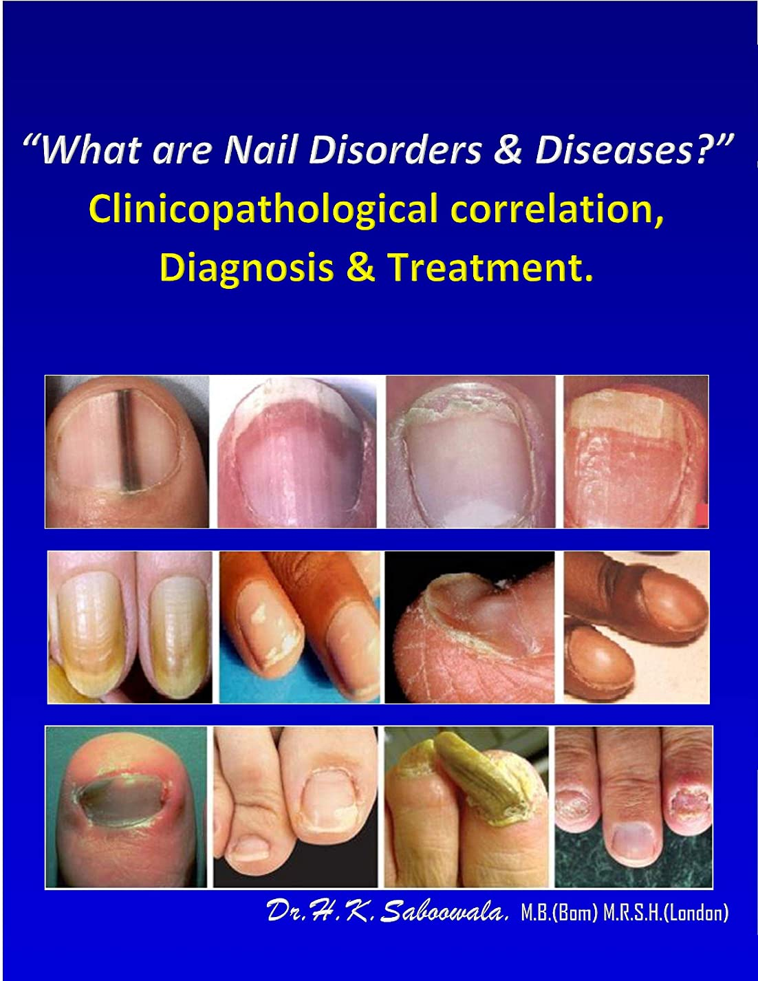 "トランスペアレント百年スイング""What are Nail Disorders & Diseases?"" Clinicopathological correlation, Diagnosis & Treatment. (English Edition)"