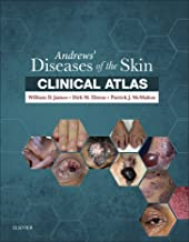 Best andrews diseases of the skin Reviews