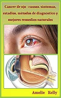 Cáncer de ojo - causas, síntomas, estadios, métodos de diagnóstico y mejores remedios naturales (Spanish Edition)