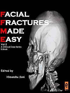 Facial Fractures Made Easy VOL II - A clinical case series (English Edition)