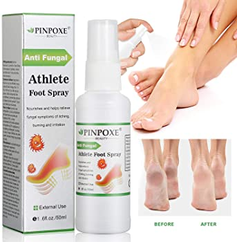 Explore athlete's foot sprays for shoes