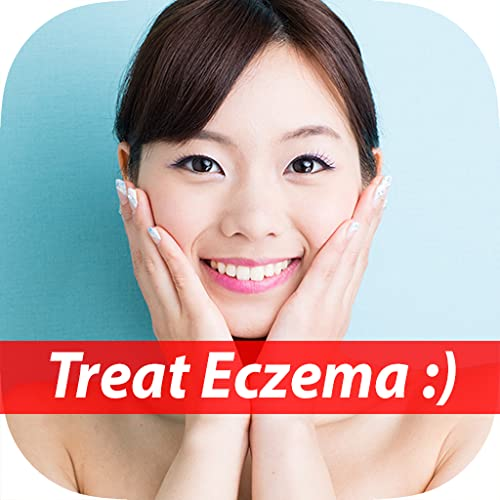 How To Treat Your Eczema - Best Way To Handle Your Eczema (Body, Face, Hand, Baby, etc.) For Beginners