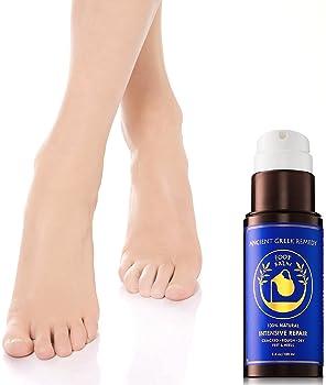 Organic Foot Cream, Dry Feet Moisturizer, Cracked Heel Treatment, Soft Feet Balm, Rough Foot Care Kit, Athletes Foot ...