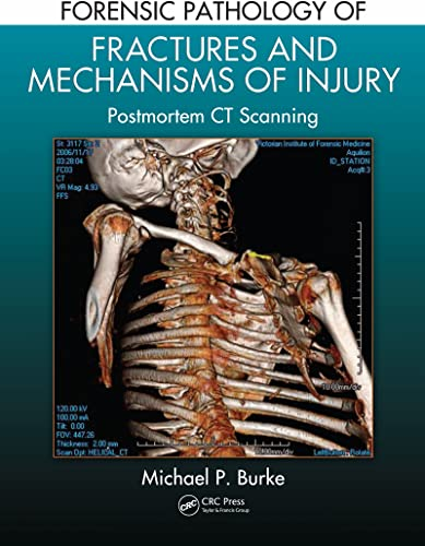 Books By Michael P Burke_forensic Pathology Of Fractures And ...