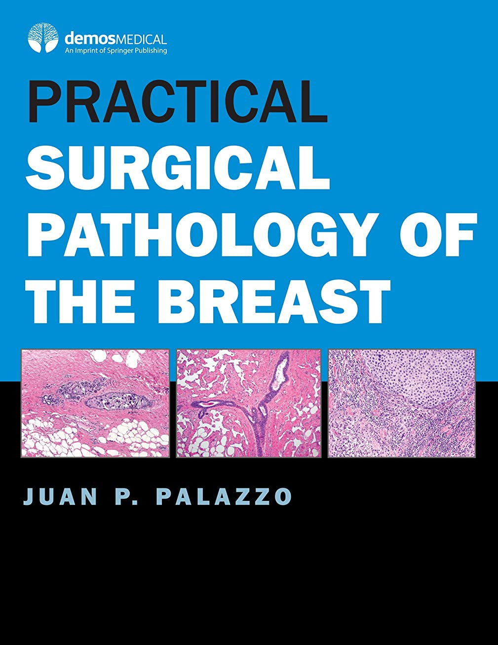 わかりやすいダイジェストブッシュPractical Surgical Pathology of the Breast (English Edition)