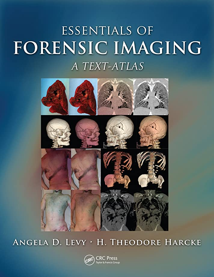 服を着る必要としている想定するEssentials of Forensic Imaging: A Text-Atlas (English Edition)
