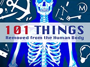 101 Things Removed from the Human Body