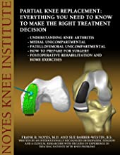 Partial Knee Replacement: Everything You Need to Know to Make the Right Treatment Decision: Understanding knee arthritis -...