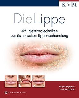 Die Lippe: 45 Injektionstechniken zur ästhetischen Lippenbehandlung