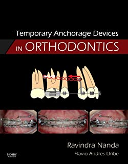 Best temporary anchorage devices in orthodontics Reviews
