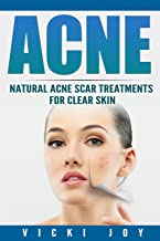 ACNE: Natural Acne Scar Treatments for Clear Skin (Clear skin, clear skin diet, acne scar treatment, acne treatment, acne scars, how to get rid of pimples, dermatology)