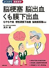 表紙: 脳梗塞 脳出血 くも膜下出血 よくわかる最新医学シリーズ | 高木 誠