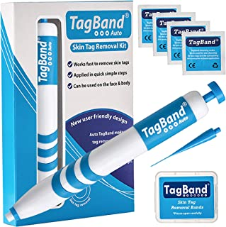 Auto TagBand Skin Tag Remover Device for Medium to Large