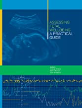 Best assessing fetal well being a practical guide Reviews
