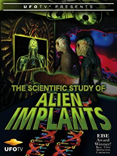 The Scientific Study of Alien Implants