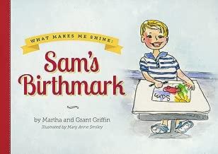 Sam من birthmark