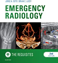 Emergency Radiology: The Requisites E-Book (Requisites in Radiology)