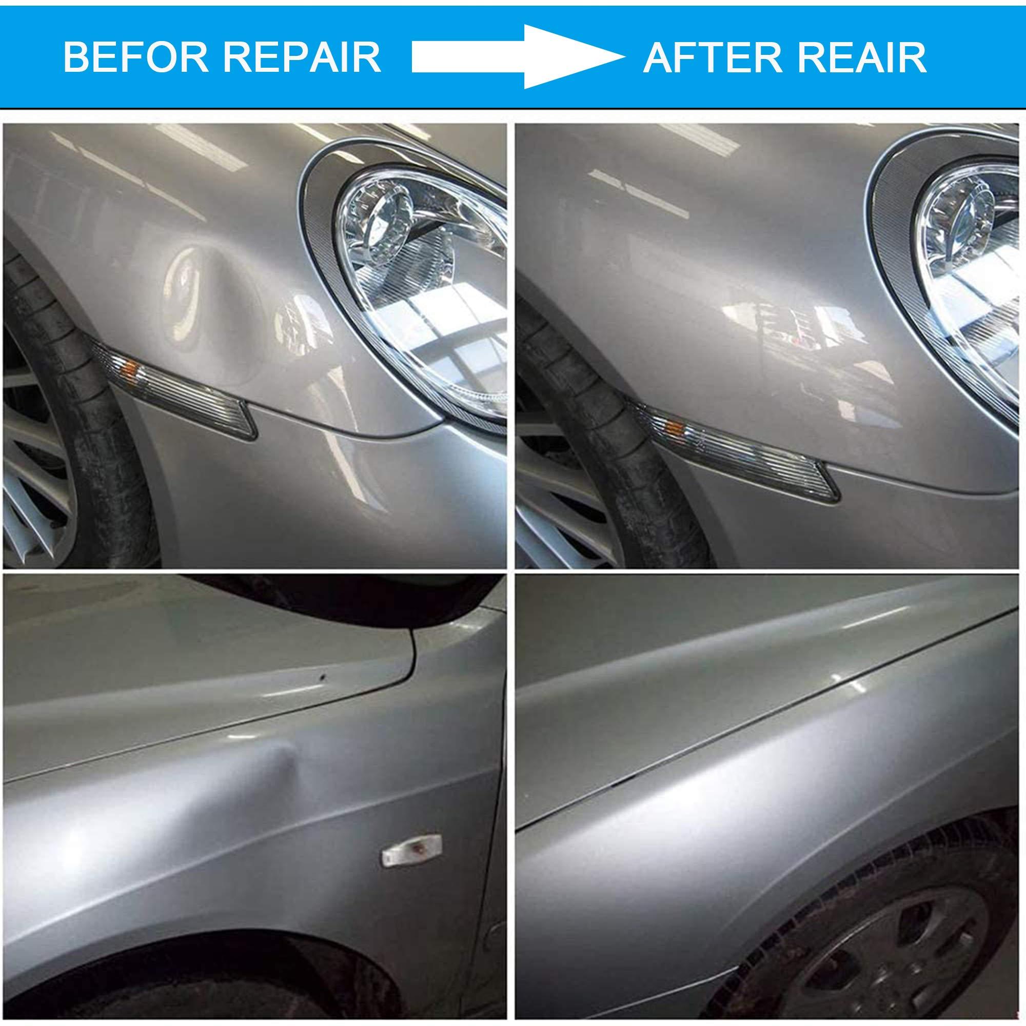 Car Dent Puller Kit with Bridge Dent Puller Minor Dent Removal ...