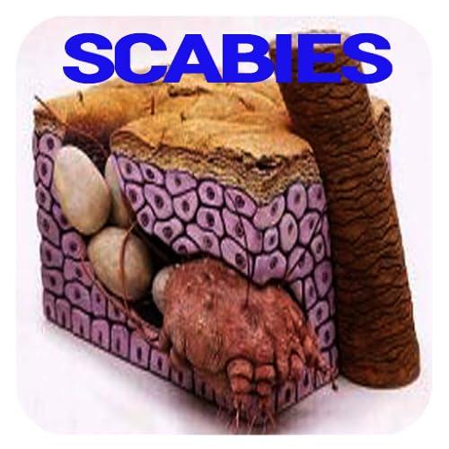 Scabies Disease