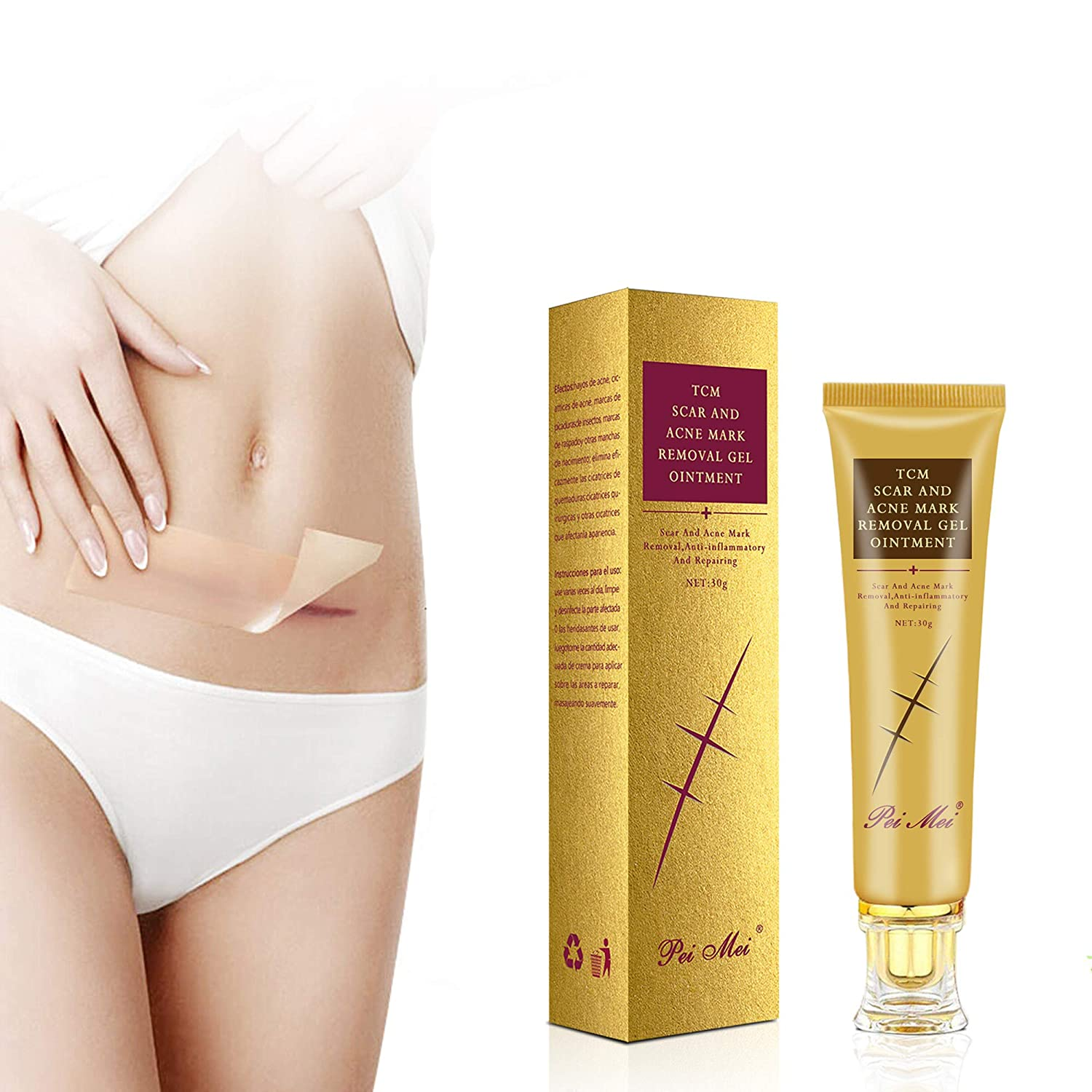 Scar Cream - Genuine Free Shipping Stretch Same day shipping Marks Silicone Sca Away Remover