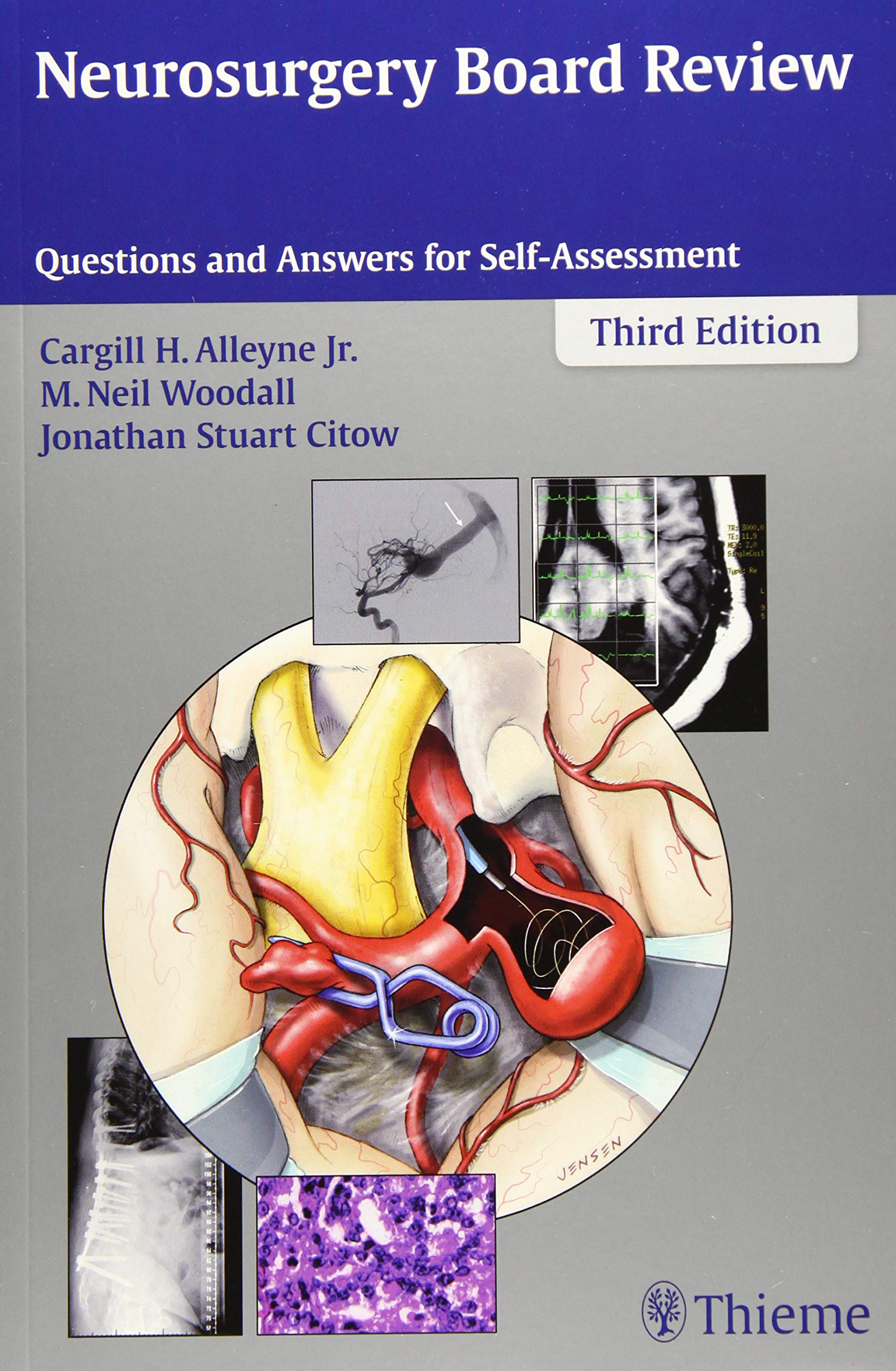 Image OfNeurosurgery Board Review: Questions And Answers For Self-Assessment