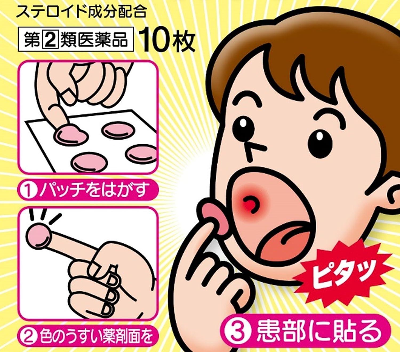 薬 妊娠初期 口内炎 妊婦は口内炎になりやすい!早く治す方法は?市販薬は?【医師監修】