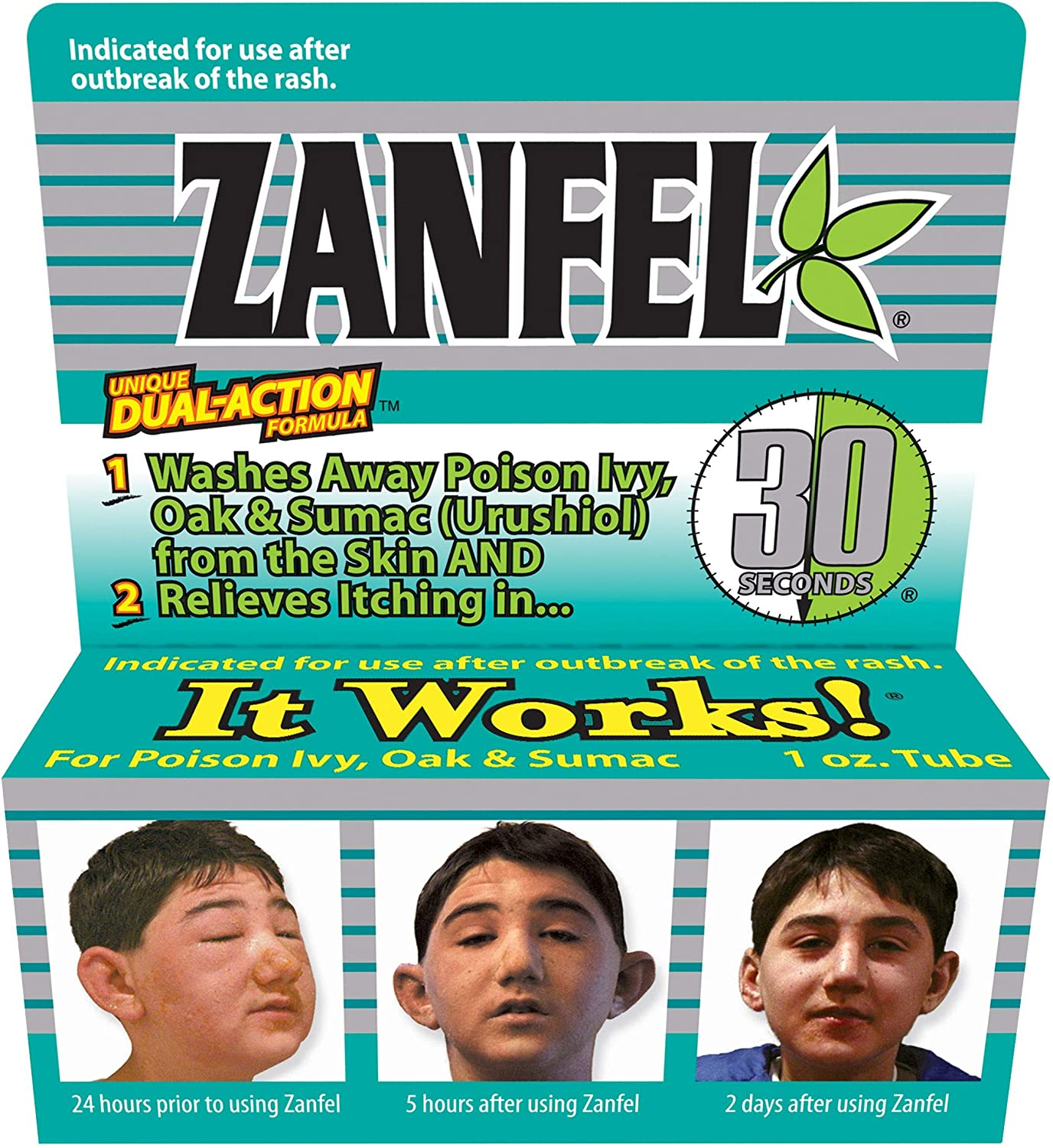 prescription topical steroid cream for poison ivy