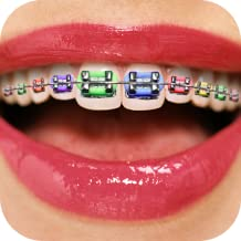 Teeth Braces Booth - Funny Face Filters
