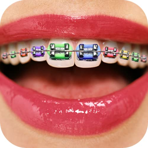 Teeth Braces Booth