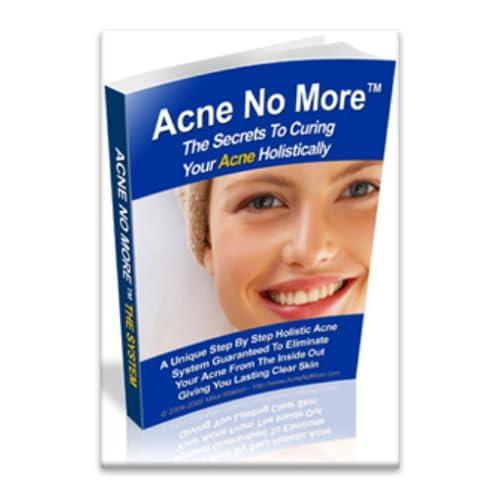 Acne No More