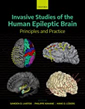 Invasive Studies of the Human Epileptic Brain: Principles and Practice