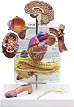 Diabetes Type 2 Anatomical Organ Model Set- Brain, Eye, Heart, Kidney, Artery, Pancreas, Foot