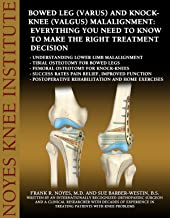 Bowed Leg (Varus) and Knock-Knee (Valgus) Malalignment: Everything You Need to Know to Make the Right Treatment Decision-U...
