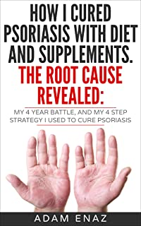 How I Cured Psoriasis With Diet And Supplements. The Root Cause Revealed: My 4 Year Battle, and My 4 Step Strategy I Used ...
