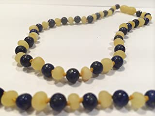 Raw Unpolished 17 inch ADHD & anti-inflammatory; arthritis, carpal tunnel Milk Baltic Amber Necklace with Lapis Lazuli (for stress, anxiety, ADHD) for children, big kids, woman, man, girl, boy, adult (Unisex) (Large beads Milk White Butter Yellow Blue) - Unolished Amber and Polished Lapis, Anti Flammatory, Pain Reduce Reduction Properties - Natural Certificated Oval Baroque Round Baltic Jewelry with the Highest Quality Guaranteed. Easy to Fastens with a Twist-in Screw Clasp Mothers Approved Remedies! Helps some with stress, anxiety, insomnia, headache, carpal tunnel, arthritis, and more. (Raw Milk Lapis Lazuli)