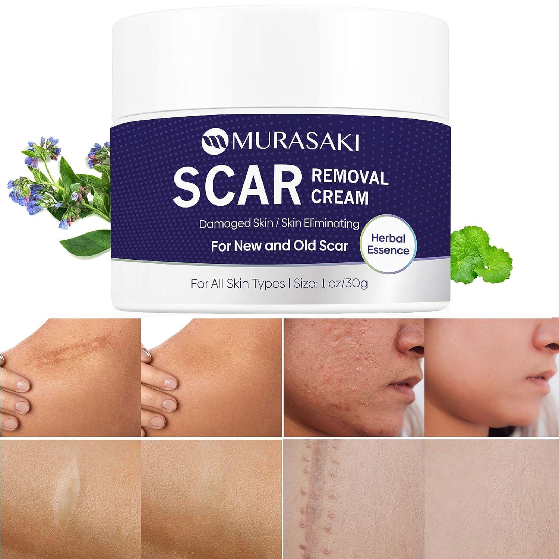Scar cream Miami Mall removal treatment Removal stre Max 49% OFF Cream-
