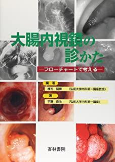 大腸内視鏡の診かた―フローチャートで考える